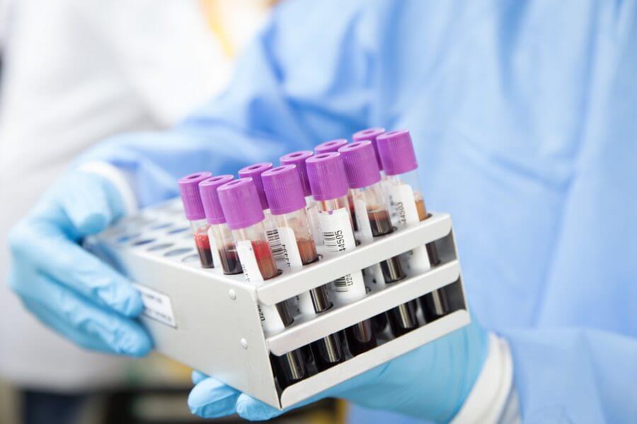 Минздрав рассказал, где в Минске можно платно сделать тест на коронавирус. Цена — 22,5 рубля